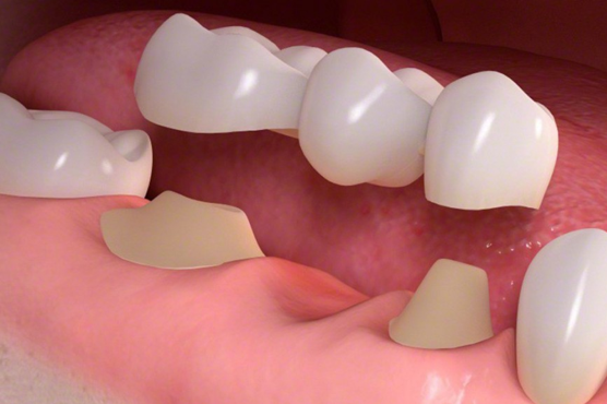 dental bridges diagram mar vista