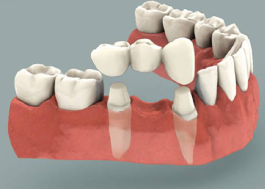 dental bridges in santa monica
