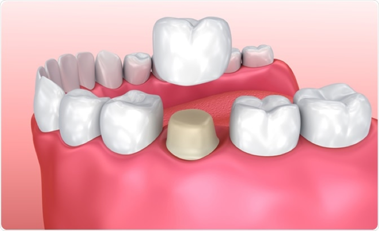 dental crown diagram in santa monica ca